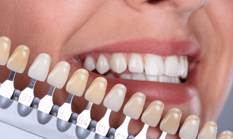 Dental Veneers - What You Need to Know