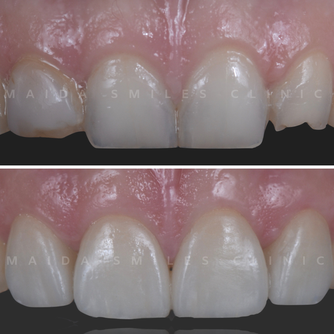Smile makeovers, often with the use of dental veneers, are increasingly popular. Through thin layers of pure ceramic, it's possible to create a new, brighter, aesthetically harmonious, enhanced smile.