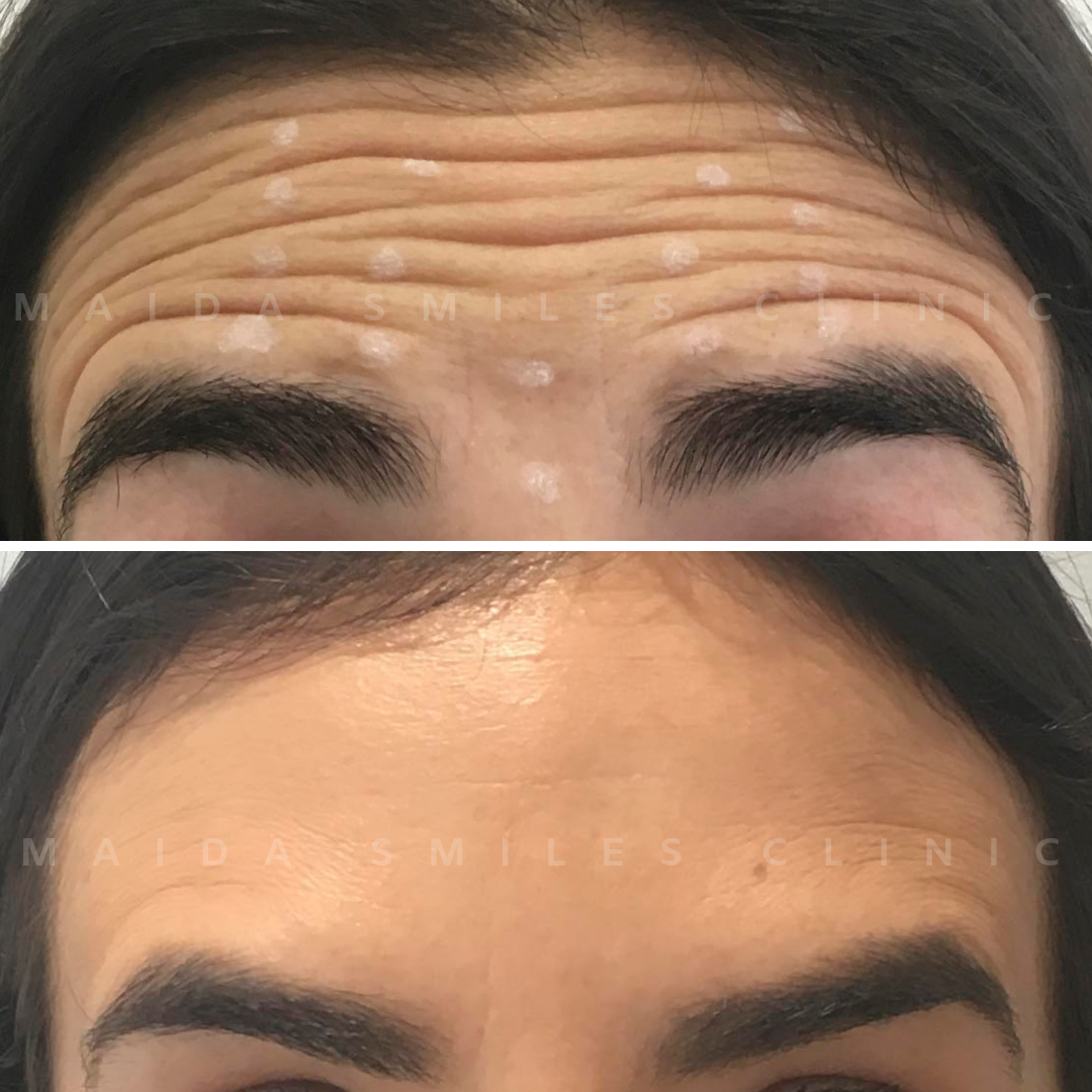"""There is no age or gender for Facial Aesthetics harmonization. The case we share today was performed on a patient unhappy with the expression lines on the forehead. Our patient wanted to try Botox and was """"over the moon"""" with the results achieved."""