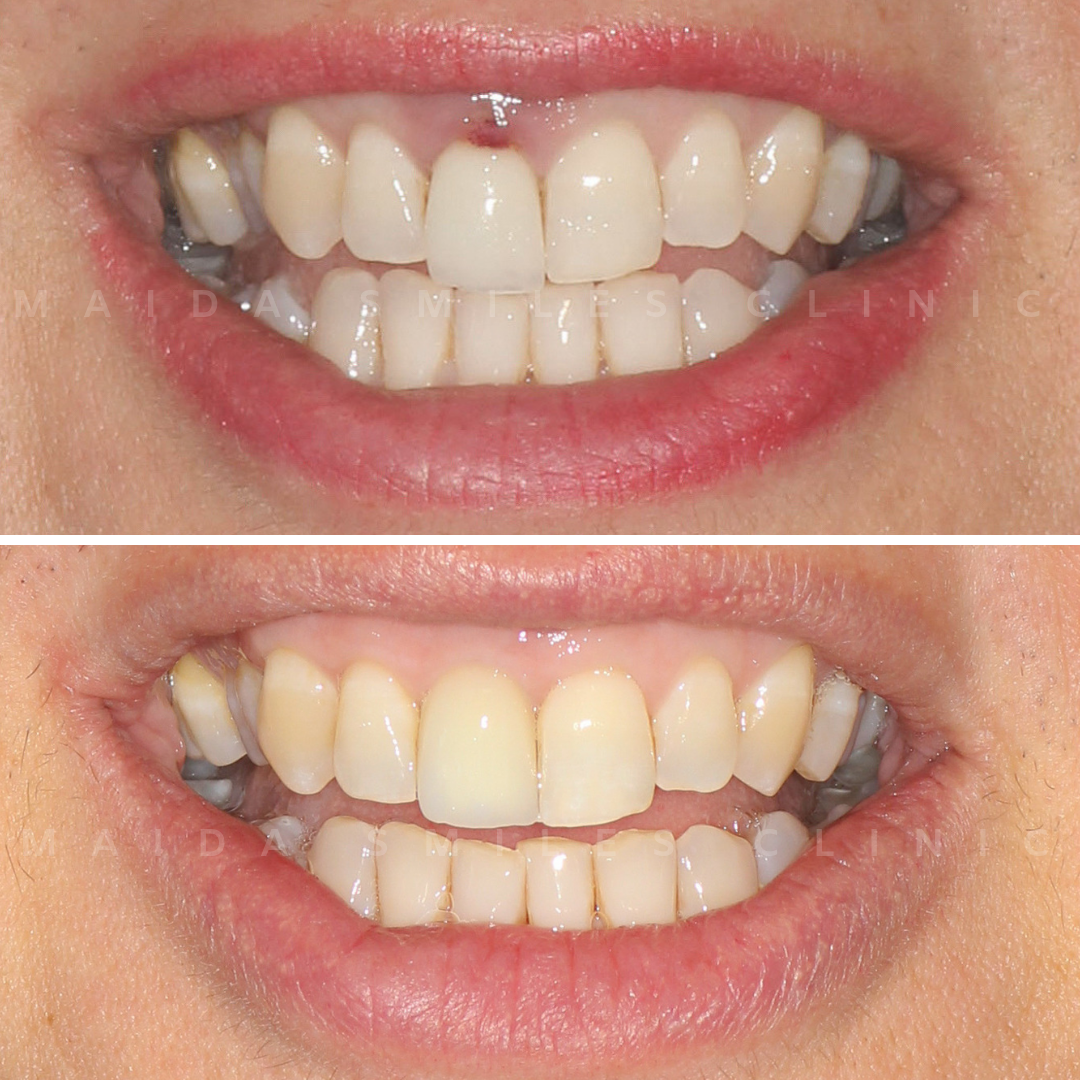 Apart from aesthetics, a smile should always be healthy. The case we share today concerns a trauma in a front top tooth. This developed complications such as tooth discoloration and infection on the surrounding gum. The treatment consisted on the removal of the failing tooth followed by insertion of an implant fixture, later restored with a fully secured implant tooth crown.