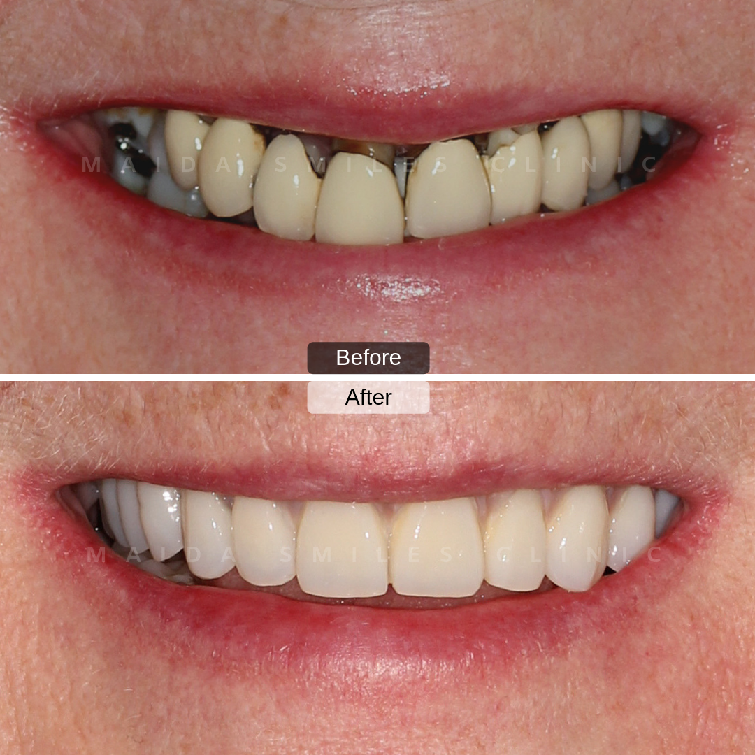 "Dental Implants ""Teeth in One Day"" was the agreed solution to rehabilitate this smile! On the same day, it was possible to re-establish the balance between aesthetics, function and health. Don't compromise when it comes to your health."