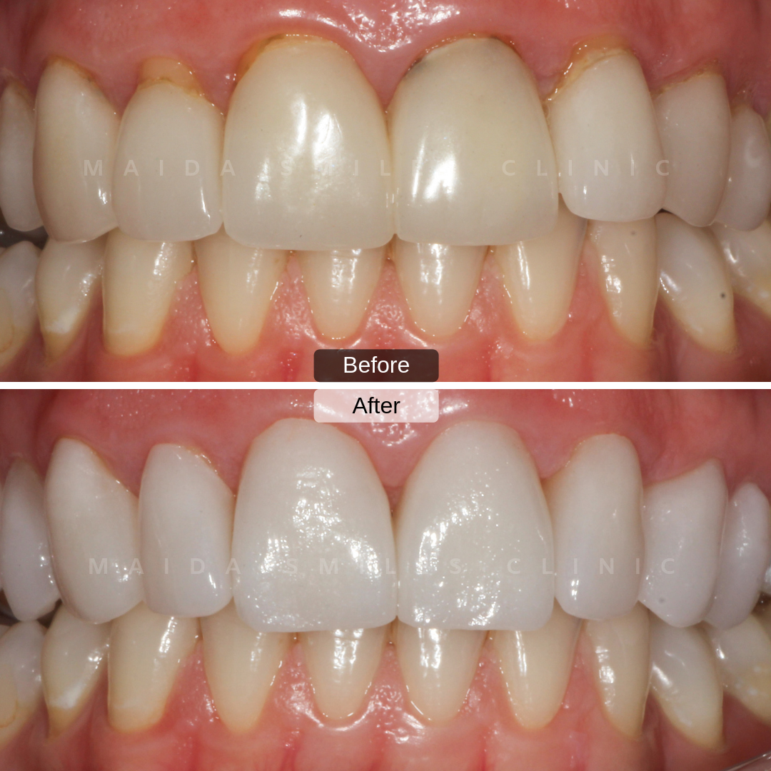 Veneers allow us to enhance one's Smile through altering teeth Shape, Colour and Texture, giving greater symmetry to a smile and restoring teeth proportions harmony.