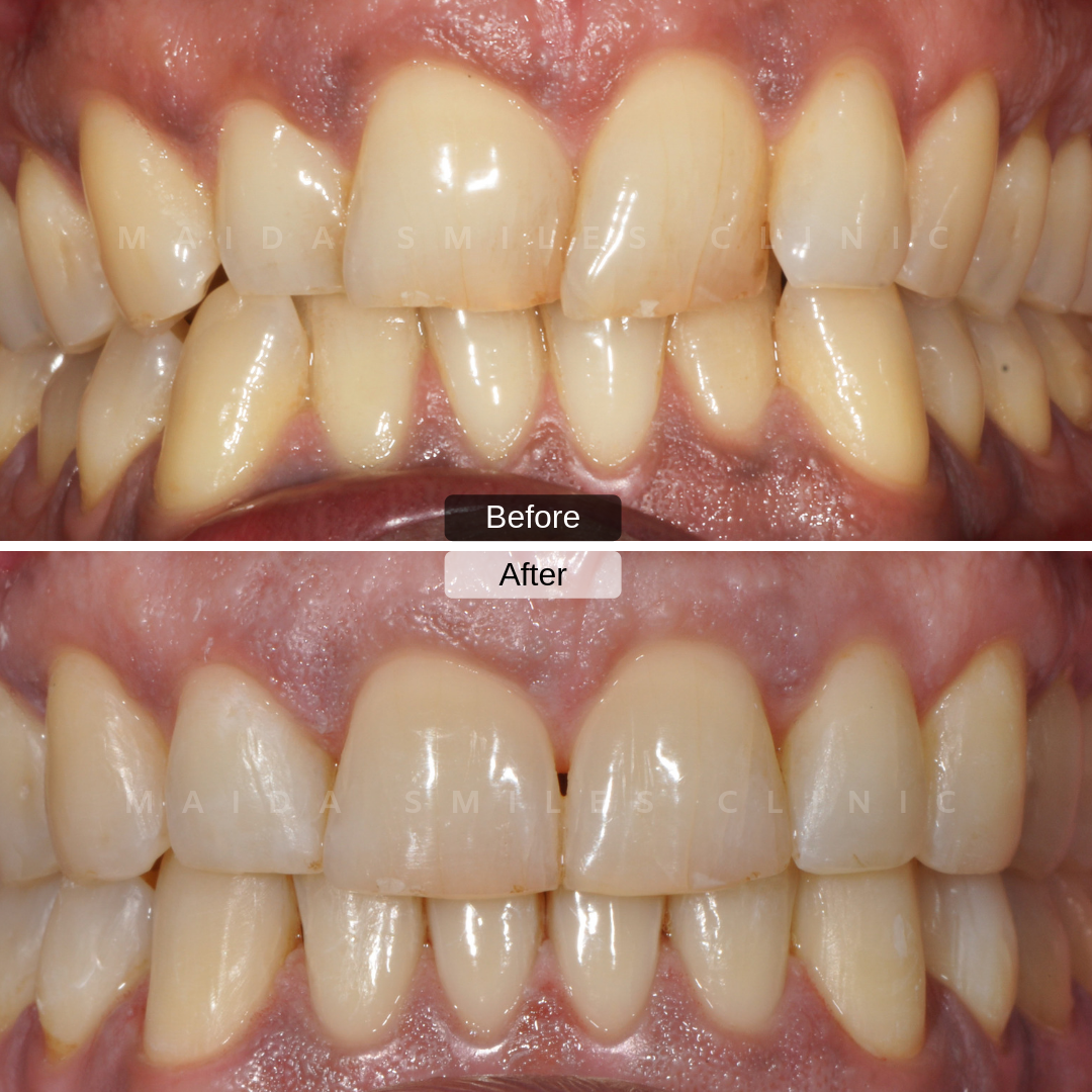 In just 3 months it's possible to have significant improvement in the correction of misaligned teeth with clear, nearly invisible removable aligners braces! We now present another picture of one of the cases concluded this week, treated with Invisalign.