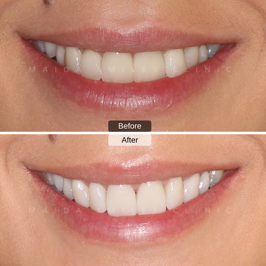 The use of Ceramic Veneers, increasingly popular, is a minimally invasive solution that allows long-lasting and very natural results, as the case we present today, conducted by Dr. Pedro Gutierres.