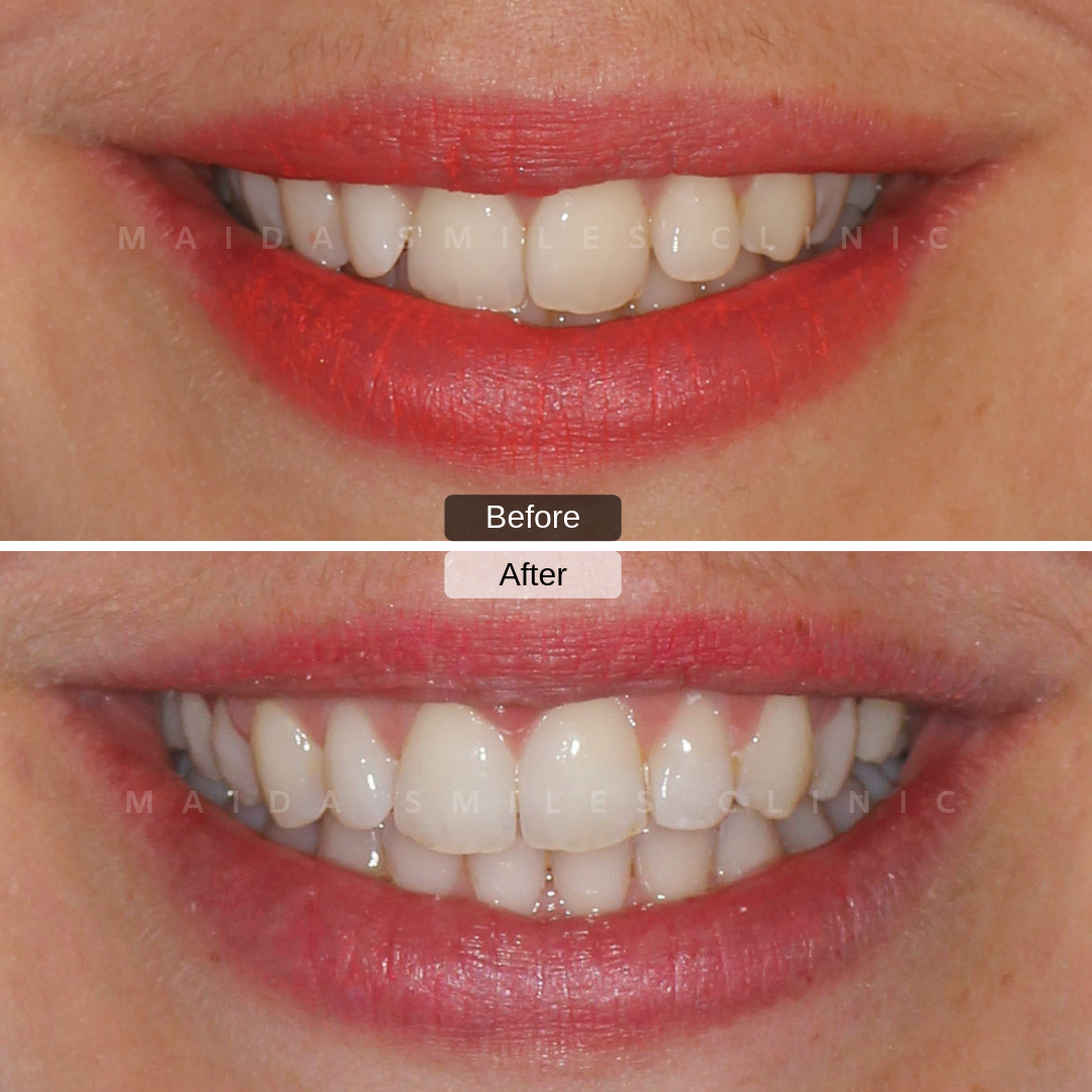 Invisalign, a type of clear removable braces are a solution for those looking to align their teeth, in a more comfortable and discreet way.