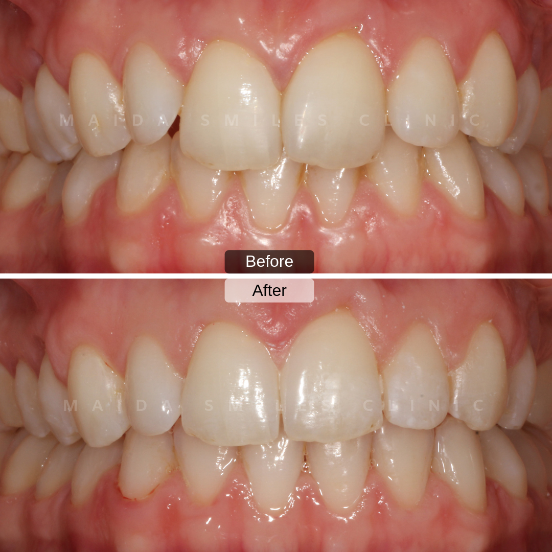 We now present the final photos of the Invisalign case shared earlier this week! As you can see, with these sets of transparent aligners we are able to correct misaligned crowded teeth.