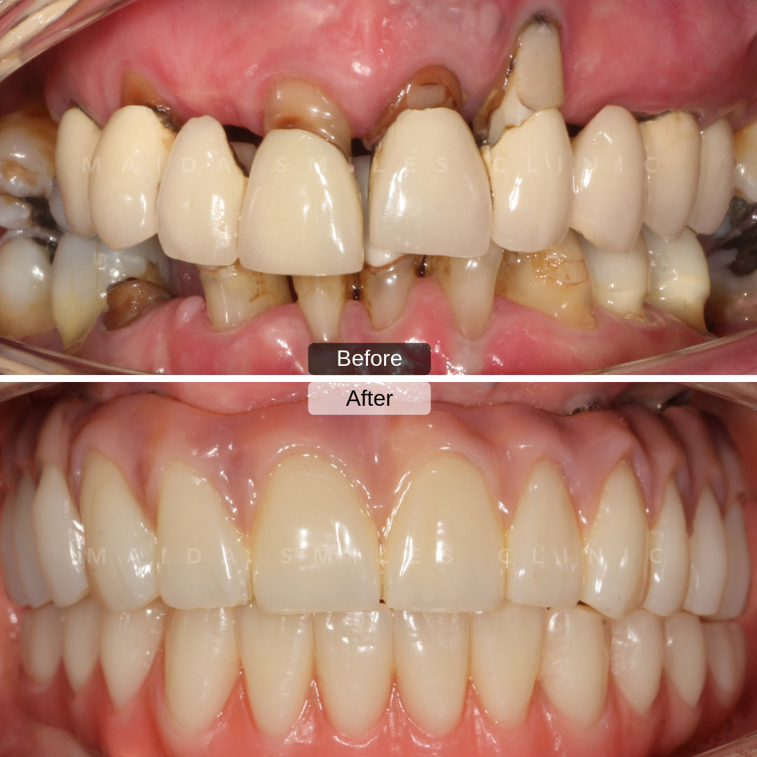 Dental implant treatments are an added advantage in restoring someone's smile. When adequate protocols are followed through implants allow a natural long lasting durable smile. Don't compromise when choosing where to have your smile restored.