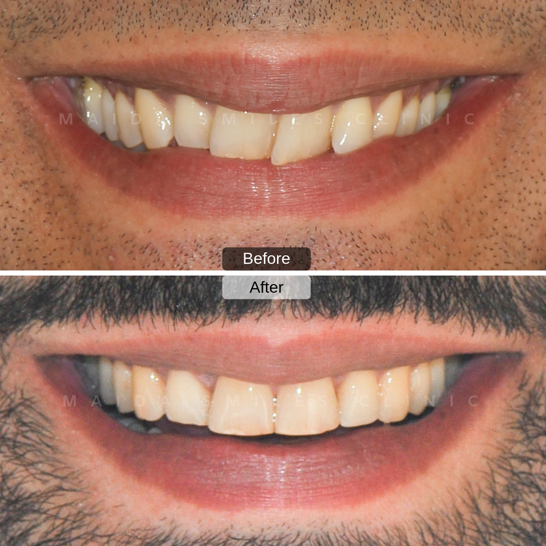 Many people have now transformed their lives with our near-invisible clear removable braces. Invisalign, an alternative to conventional teeth braces train tracks, consist on wearing a series of removable transparent aligners that will gradually straighten your teeth.