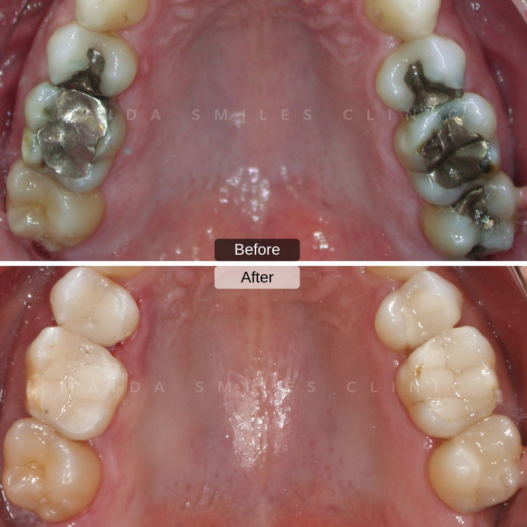Through the latest technologies in oral rehabilitation, it is possible to replace old silver fillings containing mercury, with new totally adapted tooth coloured Ceramic Restorations.