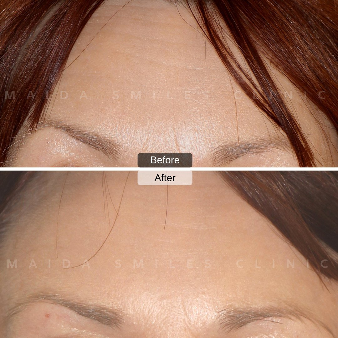 In addition to the smoothing of the marked facial expression lines, Botox can aid to prevent discomfort, headaches and migraines. The application of Botox and use of Dermal Fillers, are procedures increasingly taken into consideration by GP´s and other health care workers in the prevention and promotion of health. Speak to our team of dedicated dentists to find out more!