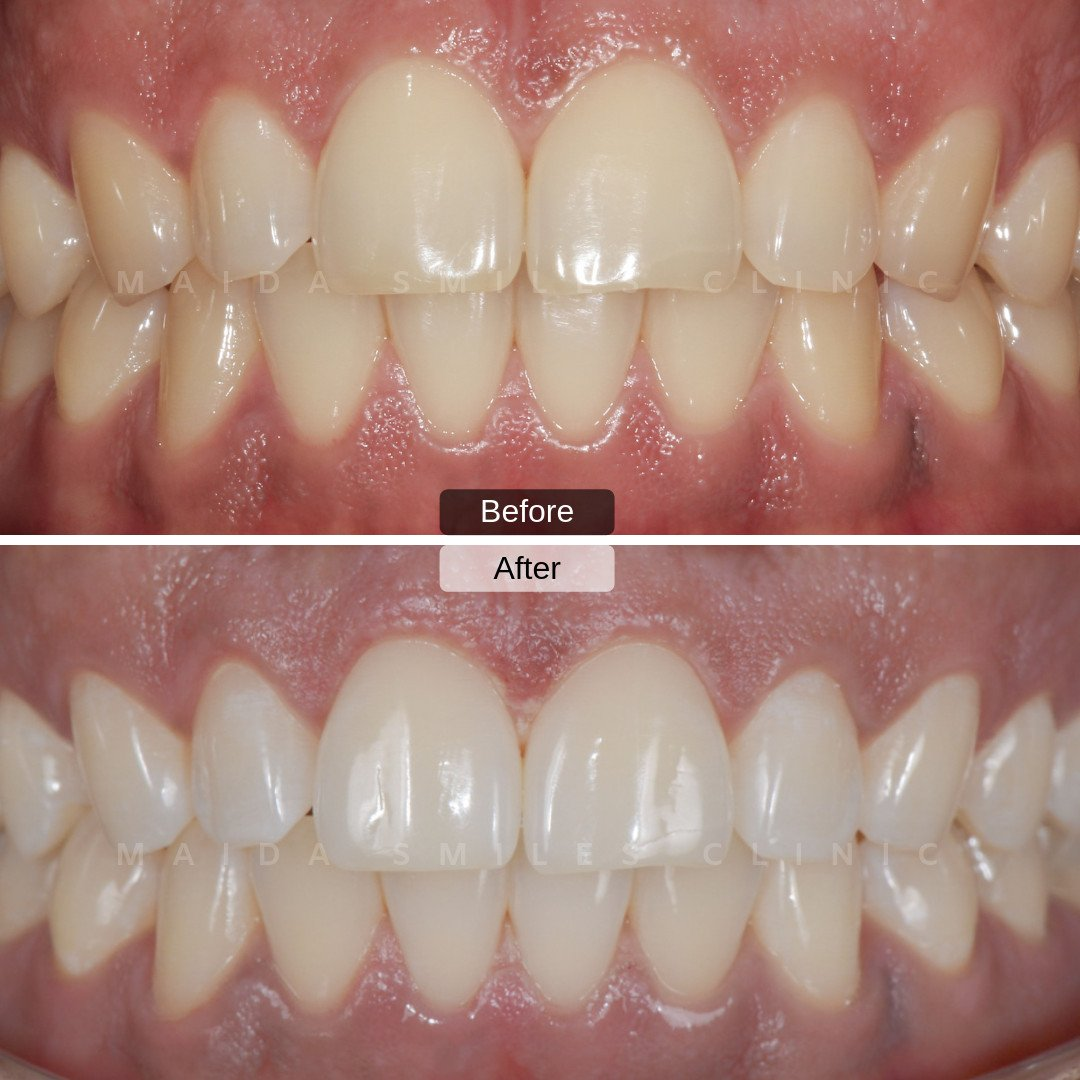 This week we are proud to present you a tooth whitening case carried out by Dr. Pedro Laranjeira. For this smile, we used The Enlighten Evolution System which is proven to be very effective at whitening teeth. What do you think of the before and after of this treatment?