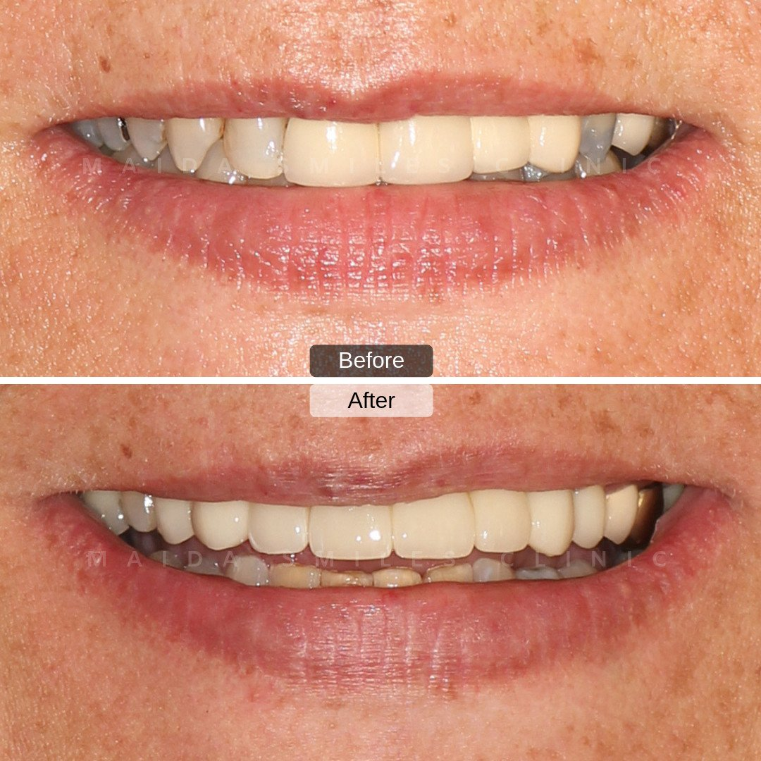 The case we share with you today was carried out by Dr Pedro Gutierres. Through Veneers and Dental Crowns we were able to restore this smile, enhancing its natural aesthetic. The patient was so excited with the outcome!