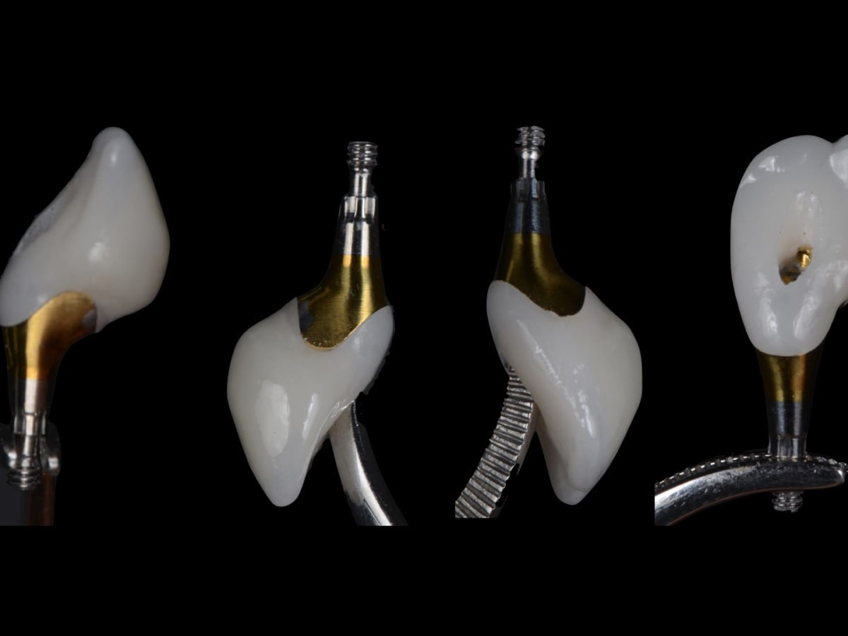 Dental Implants - What You Should Expect