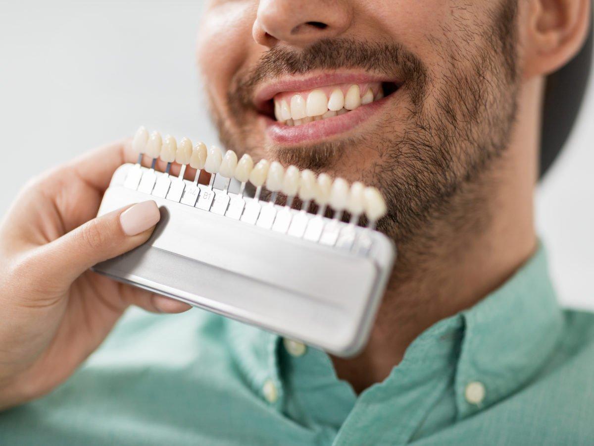 Dental Veneers – The Most Famous Cosmetic Dental Procedure