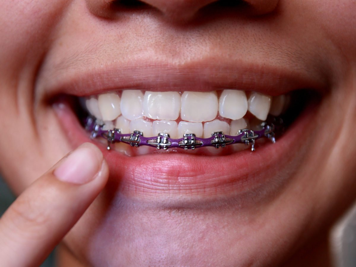 How Old is Too Old for Braces?