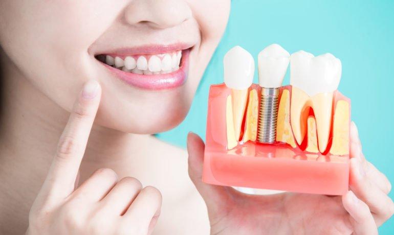 Do I need dental implants?