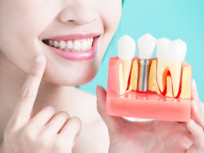What are All-on-4 Dental Implants
