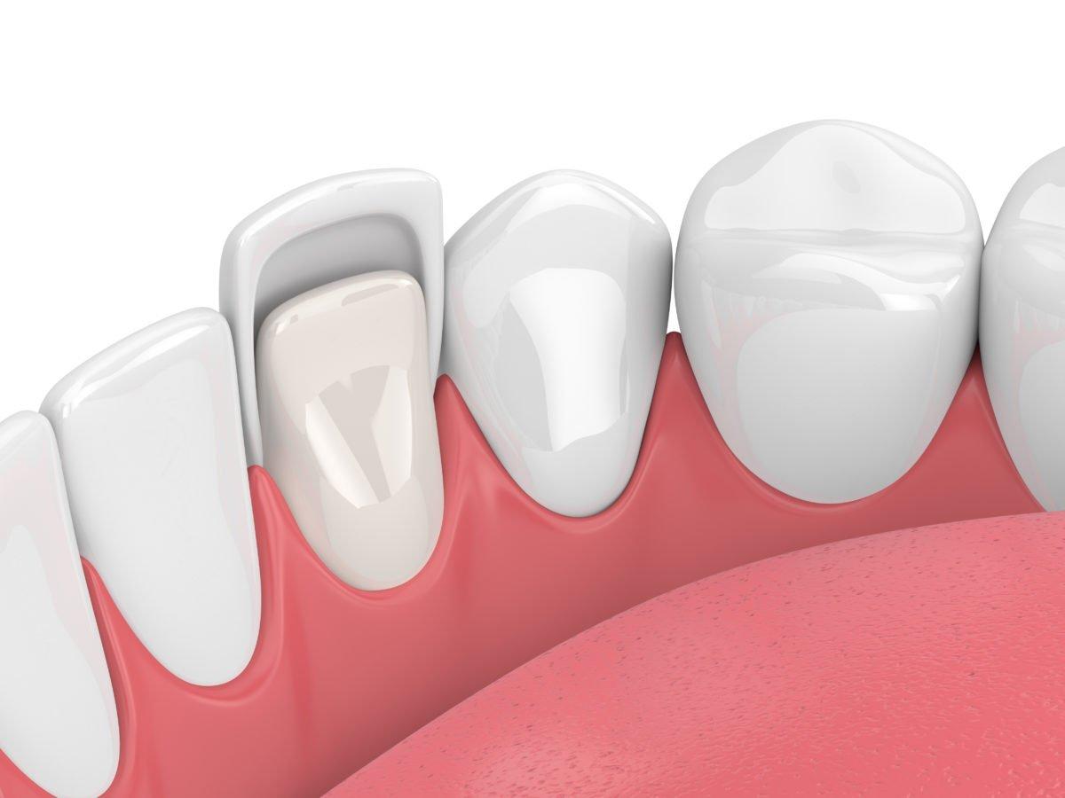 How can veneers help crooked teeth?