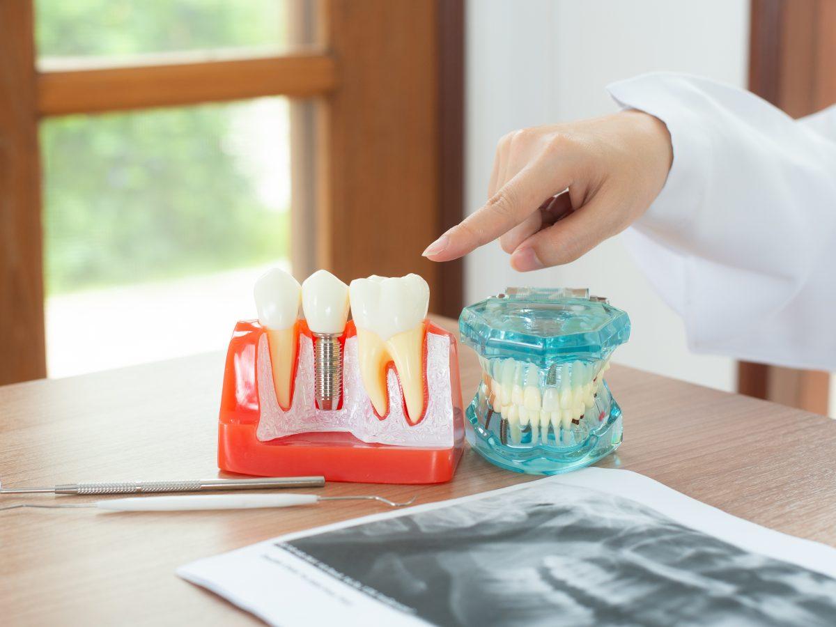 Dental implants vs Removable dentures