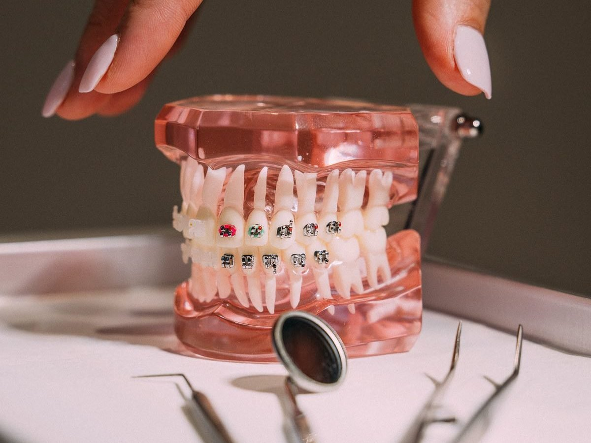 Invisible Braces UK - Guide for Teenagers
